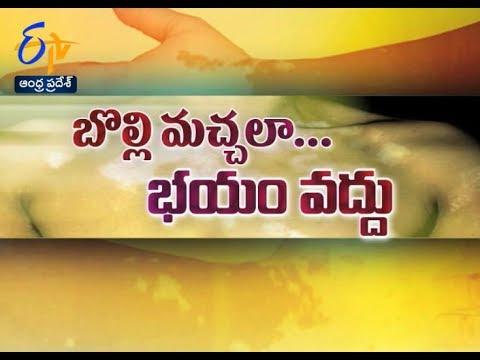 Vitiligo Day   Sukhibhava   25th June 2017   Full Episode   ETV Andhra Pradesh