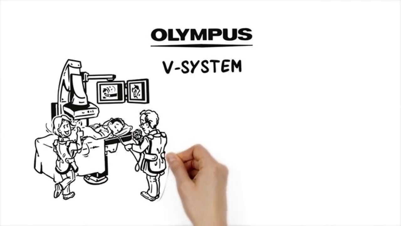 Olympus V-System - ERCP Kurzdrahtsystem - YouTube