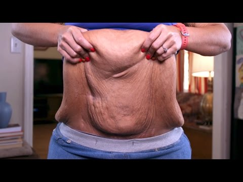 Holly Escaped An Abusive Home And Lost 200 Pounds, But Is Still Carrying Excess Skin