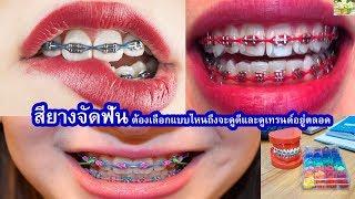 สียางจัดฟัน!!!!ต้องเลือกแบบไหนถึงจะดูดีและสียอดฮิตมีสีอะไรบ้าง ต้องตามเทรนด์