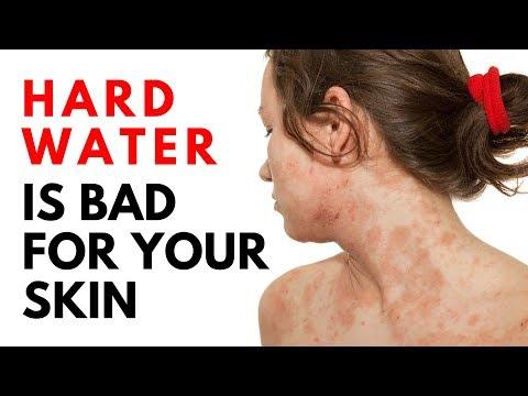 Hard Water On Skin