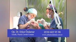 Dr  Erkut Özdamar'ın  Saç Ekimi Operasyonu