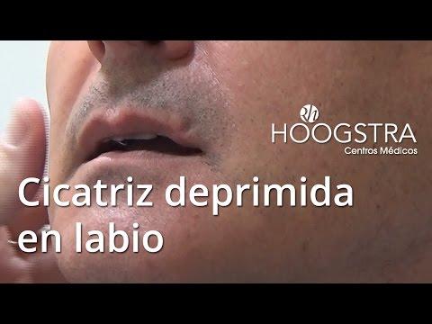 Cicatriz deprimida en labio (15144)
