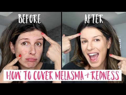 HOW TO COVER MELASMA AND REDNESS  Natural Makeup and Color Correction  Shenae GrimesBeech