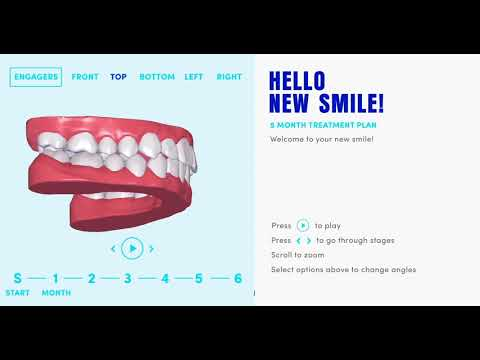 Straighter Teeth At Home With Our Invisible Braces | Clear