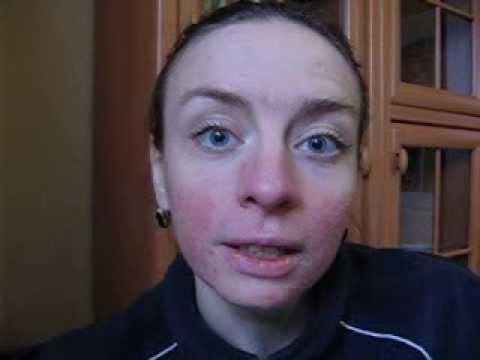 Аллергия, атопический дерматит, сыпь, метод Марвы Оганян 1 день