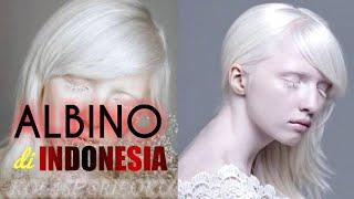 Istilah kampung albino atau kampung bule sudah melekat di desa Ciburuy ini sejak dulu. Menurut t.