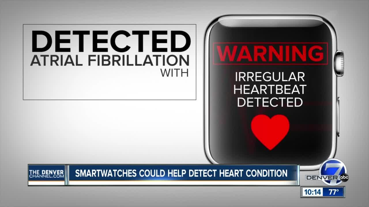 Some doctors worry the new Apple Watch health features will freak us all out, WebMD-style