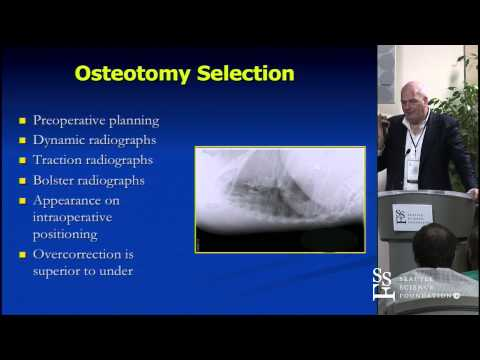 Posterior Deformity Correction: Techniques, Pearls, & Mistakes by Christopher Shaffery, M.D.