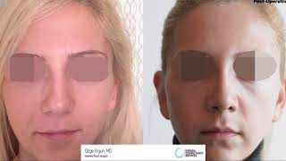 Rhinoplasty Before After - 30 Days Result - Ozge Ergun MD, Aesthetic Plastic Surgeon