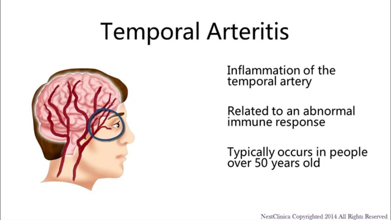 temporal arteritis - youtube, Skeleton
