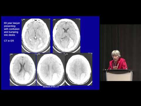Dr. Sandra Black: Connecting The Heart, Brain And Mind