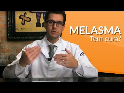 melasma tratamento