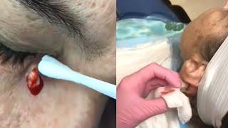 ВЫДАВЛИВАНИЕ ОГРОМНЫХ ПРЫЩЕЙ ГНОЙНИКИ НА КОЖЕ ЛИЦА Прыщи Черные УГРИ Акне Bigger Pimples
