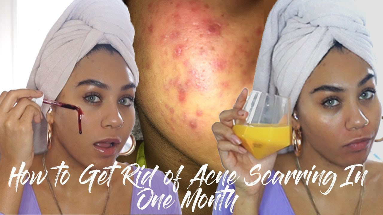 HOW TO GET RID OF ACNE SCARRING IN ONE MONTH: SUPER IN DEPTH SKINCARE ROUTINE FT THE ORDINARY