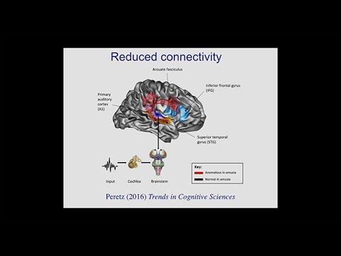 Variations of the Mind:Peretz:Born to be Musical:Ockleford:A Musical Savant Treffert:Savant Syndrome
