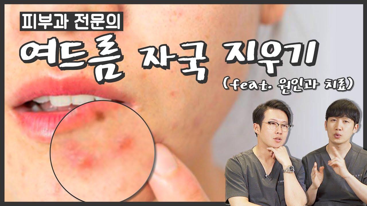 여드름 색소침착 원인과 치료 (feat. 여드름 흉터 자국, 토닝)