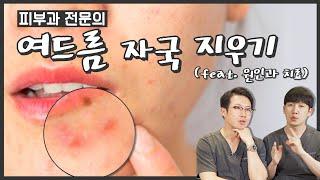 여드름 색소침착 원인과 치료 (feat. 여드름 흉터 …