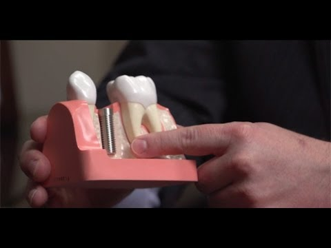 Same Day Dental Implant Procedure with Oral Surgeon Dr. John Wallace
