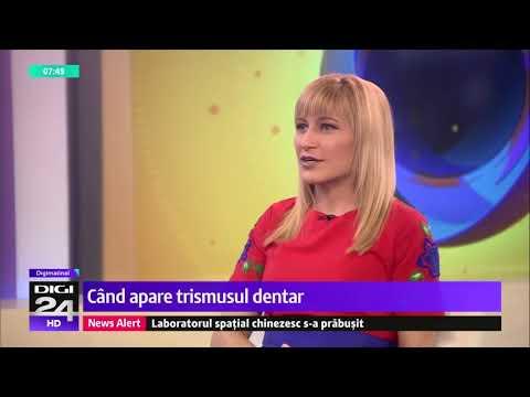 Trismusul dentar