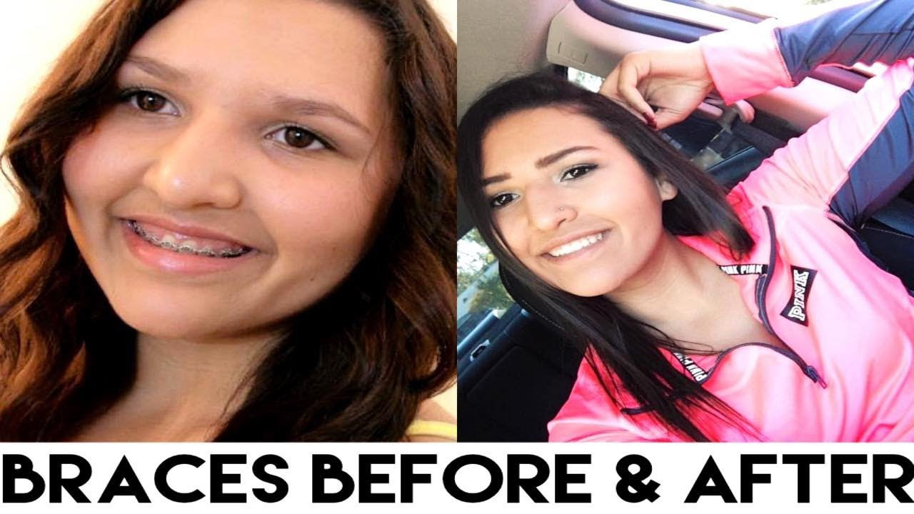 My Braces Experience ♡ Before & After!