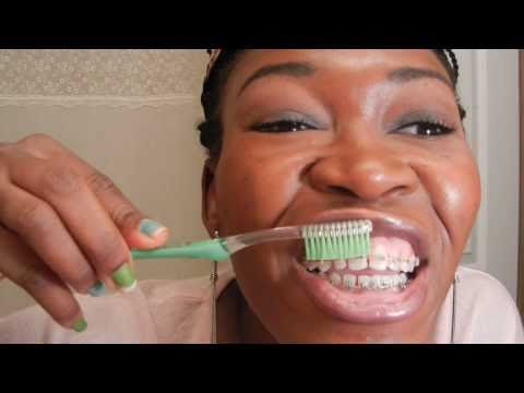 {#25}: (step by step guide): BRUSHING TEETH WITH BRACES ON. part#2