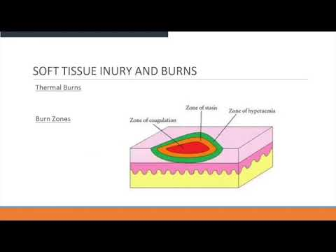 Soft Tissue Injury Management For ALS Providers
