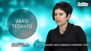 Lazerle varis tedavisi nasıl yapılır? #lazerletedavi #varis
