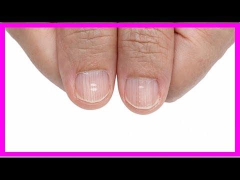 Weisse Flecken Oder Farbungen Der Fingernagel Konnen Auf Krankheiten