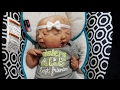 Changing CONJOINED Twin Girls - Twins Share One Body Two Faces