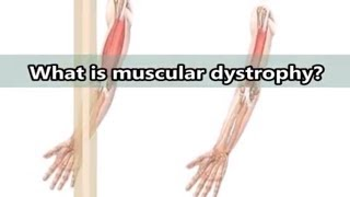 What is muscular dystrophy?- What are the causes?- symptoms and forms of muscular dystrophy