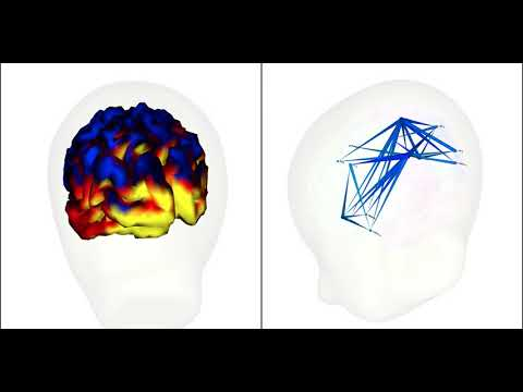 Sample Real Time Brain Visualization