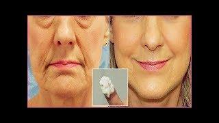 Receita Caseira – Melhor que Botox – Tira Mancha na Primeira Aplicação