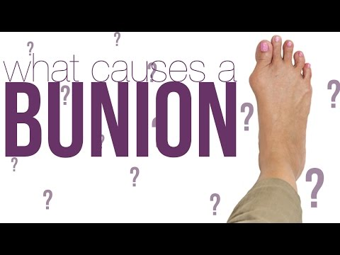 What Causes Bunion How Can It Be Treated