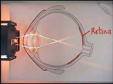 The Eye, Focus And Optical Lens