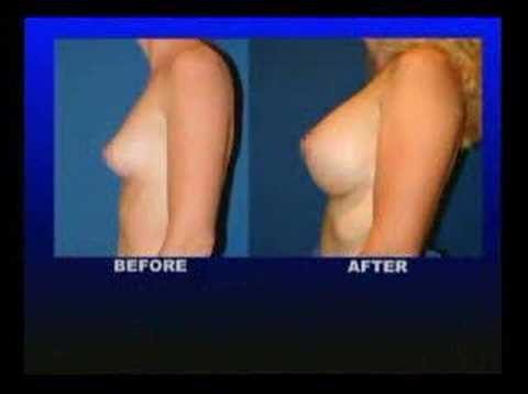 """B"" cup to ""D"" cup breast augmentation thumbnail"