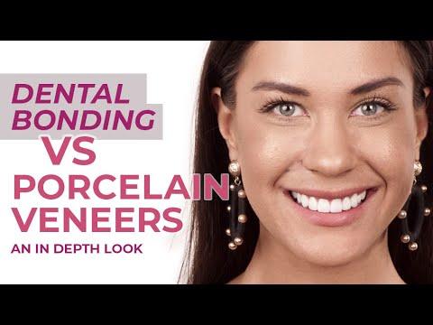 Dental Bonding VS Porcelain Veneers | An In Depth Look Reuben Sim