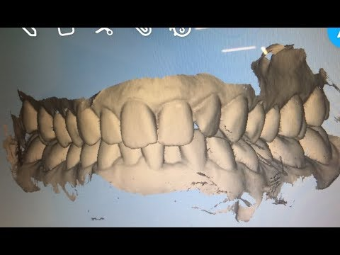 Over 40 YEAR OLD Gets Braces Or Invisalign?