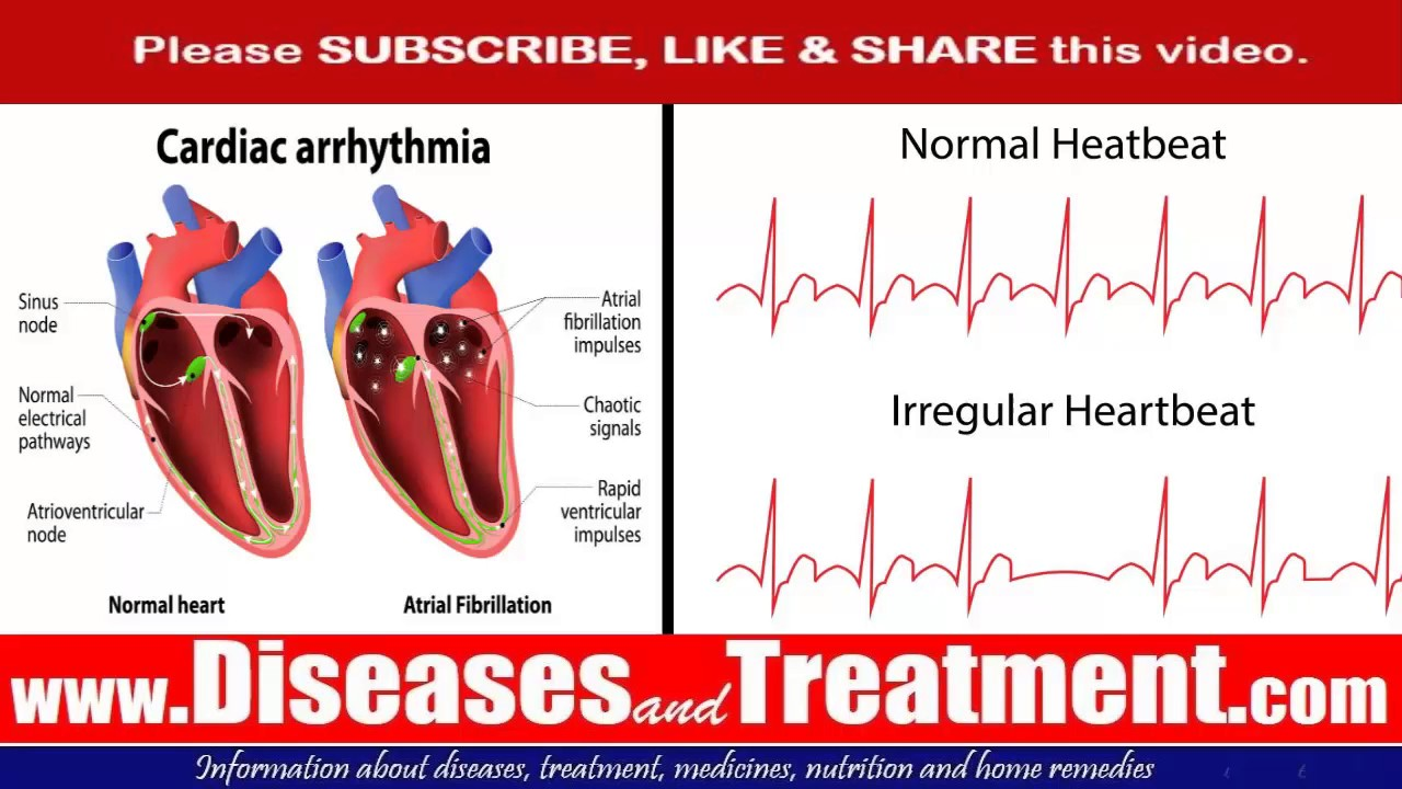 the causes and characteristics of arrhythmiaor irregular heartbeat It usually causes a fast and irregular heartbeat detection and management of heart rhythm disorders has improved the quality and quantity of life.