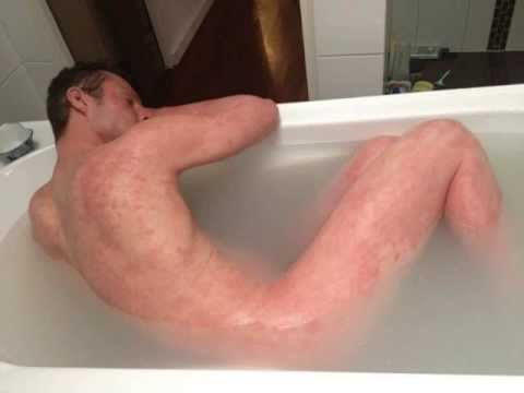 eczema treatment the benefits of treating eczema with home