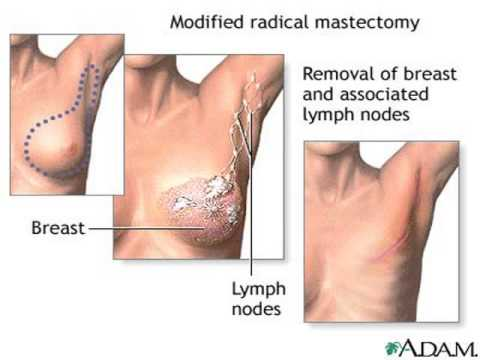 lymph nodes in groin location diagram vectra wiring armpit lumps - youtube