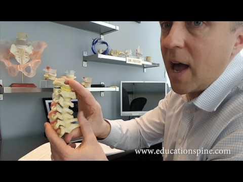 hqdefault - Back Pain When Bending Head Down
