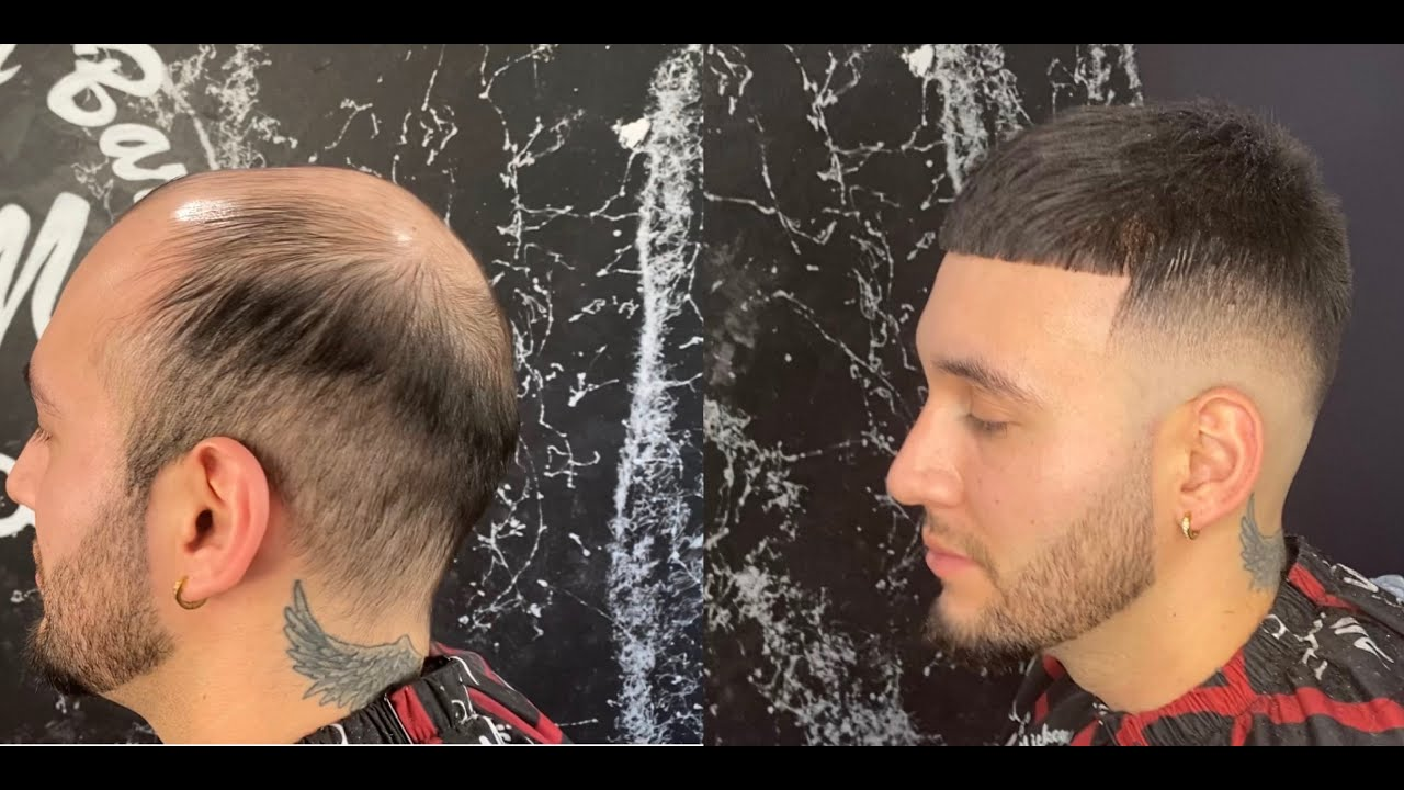 From Bald to Full Head of Hair by @mickeydabarber I Hair Unit