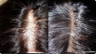 HOW TO FIX BALDING OR OVERPLUCKED LACE CLOSURE