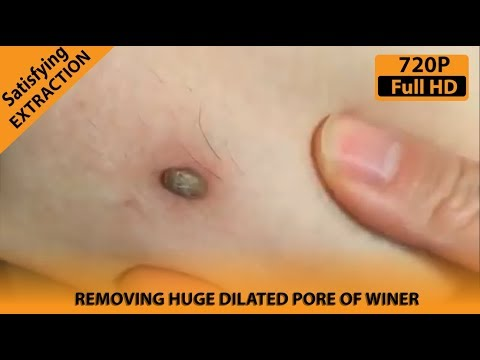 Removing A Huge and Satisfying Dilated Pore of Winer || Satisfying  Extractions