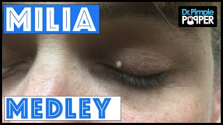 Dr Pimple Popper Milia Medley