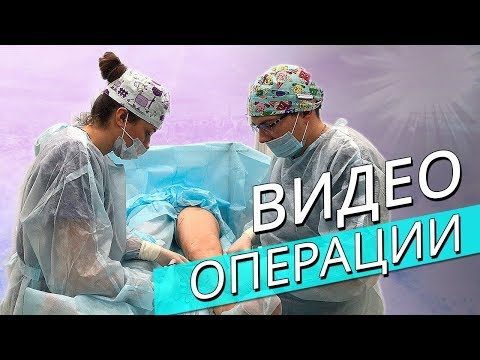 Минифлебэктомия. Видео операции.