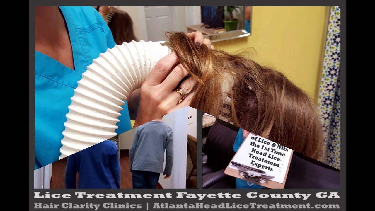 newsela head lice article