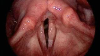 Smoker's Throat Vs. Healthy Throat (Visual Comparison)