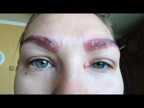 Аллергия на лице – что делать, чем лечить аллергию на лице?